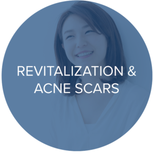 acne scars treatments monarch laser services