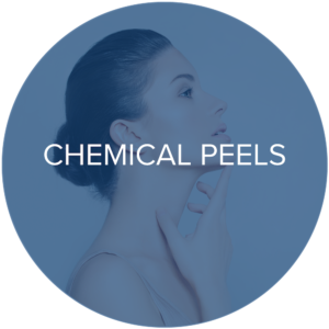 chemical peels monarch laser services