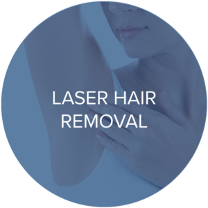 laser hair removal treatments monarch laser services
