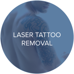 laser tattoo removal treatments monarch laser services