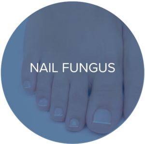 nail fungus treatments monarch laser services