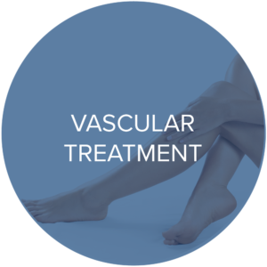 vascular treatments monarch laser services