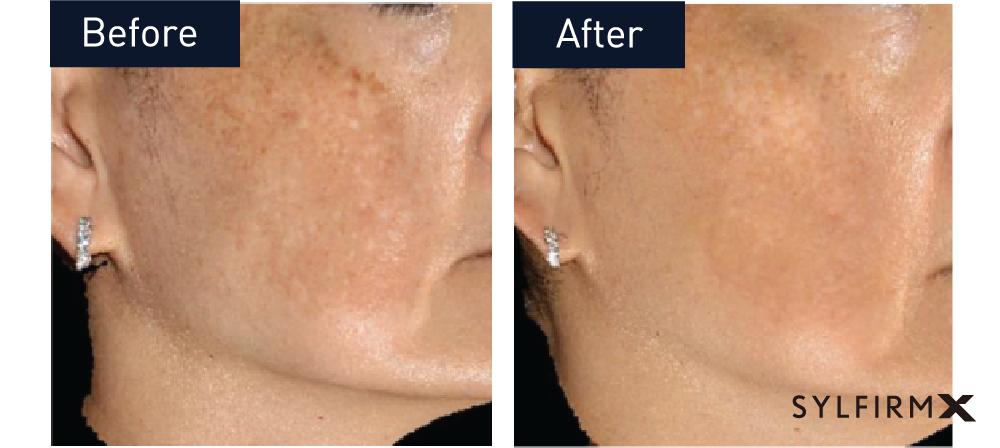 Skin Tightening – Monarch Laser Services